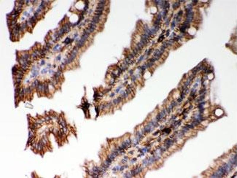Image no. 3 for anti-Major Histocompatibility Complex Class I C (HLA-C) antibody (ABIN4951309)