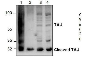 Western Blotting (WB) image for anti-Microtubule-Associated Protein tau (MAPT) antibody (ABIN411601)