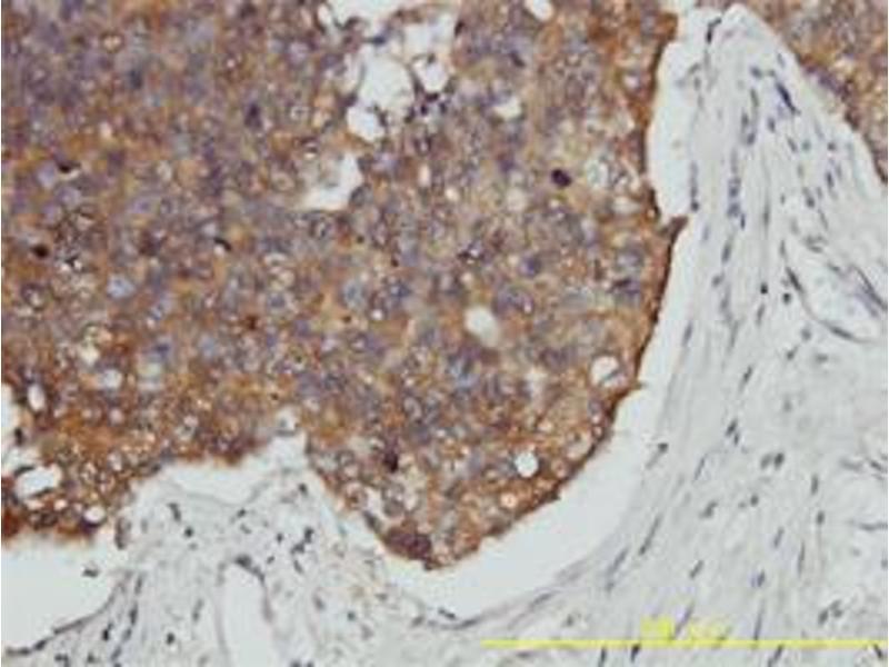 Immunohistochemistry (IHC) image for anti-Prefoldin Subunit 3 (PFDN3) (AA 1-198) antibody (ABIN395932)