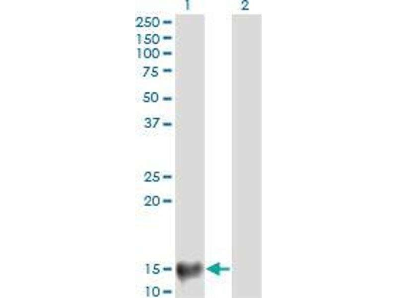 Western Blotting (WB) image for anti-Mediator Complex Subunit 21 (MED21) (AA 1-145) antibody (ABIN396240)