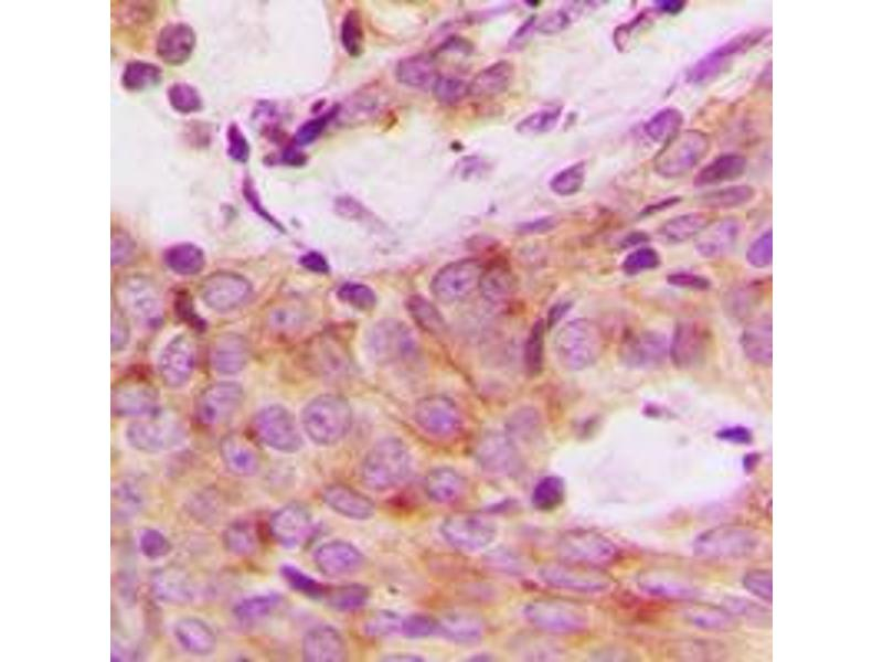 Immunohistochemistry (IHC) image for anti-RPS6KB1 antibody (Ribosomal Protein S6 Kinase, 70kDa, Polypeptide 1) (C-Term) (ABIN2705221)