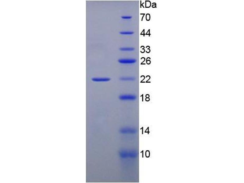 SDS-PAGE (SDS) image for Gremlin 1 (GREM1) (Active) protein (ABIN6119725)