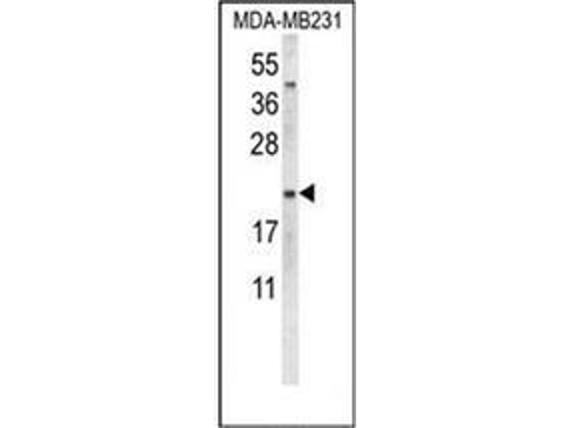 Western Blotting (WB) image for anti-Oxytocin (OXT) (AA 19-48), (Middle Region) antibody (ABIN953964)