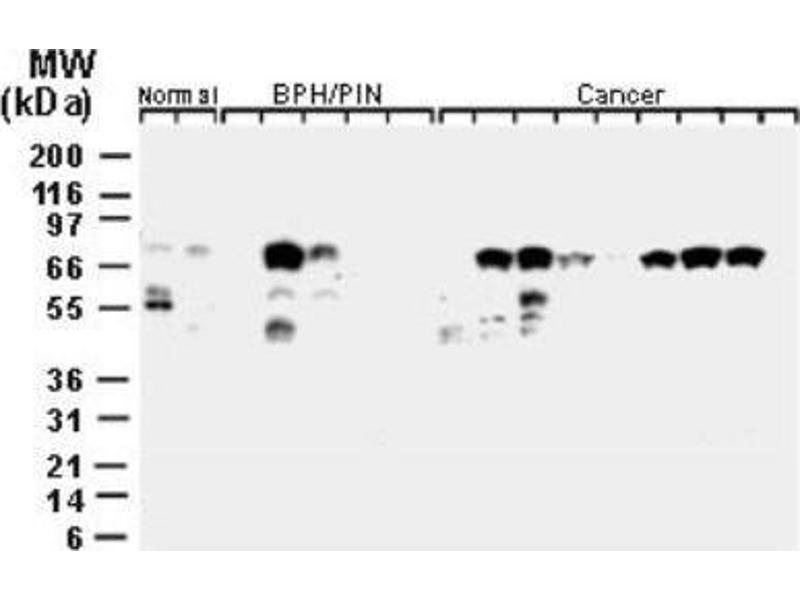 Western Blotting (WB) image for anti-Baculoviral IAP Repeat Containing 2 (BIRC2) antibody (ABIN4298716)