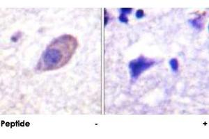 Image no. 3 for anti-Potassium Inwardly-Rectifying Channel, Subfamily J, Member 16 (KCNJ16) antibody (ABIN5581631)