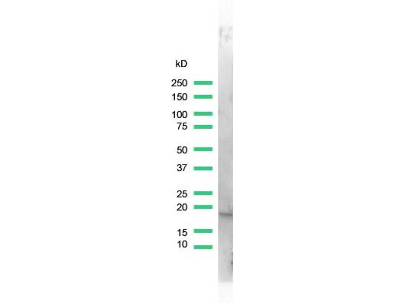 Western Blotting (WB) image for anti-Stathmin 1 antibody (STMN1) (Internal Region) (ABIN1688562)