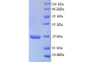 Image no. 1 for TIMP Metallopeptidase Inhibitor 3 (TIMP3) (AA 30-208), (partial) protein (His tag) (ABIN5712798)