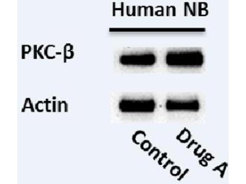 Western Blotting (WB) image for anti-PKC beta antibody (Protein Kinase C, beta) (Center) (ABIN4345827)