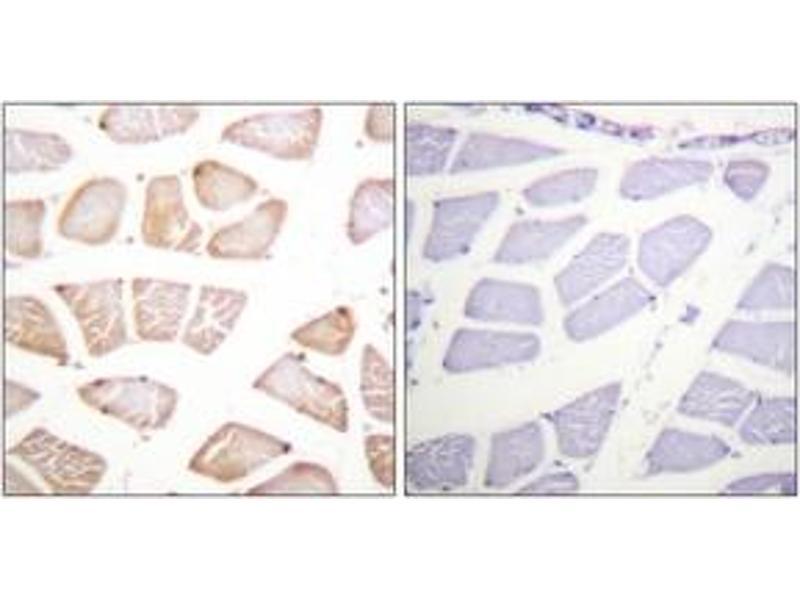 Immunohistochemistry (IHC) image for anti-V-Akt Murine Thymoma Viral Oncogene Homolog 1 (AKT1) (AA 95-144) antibody (ABIN1532436)