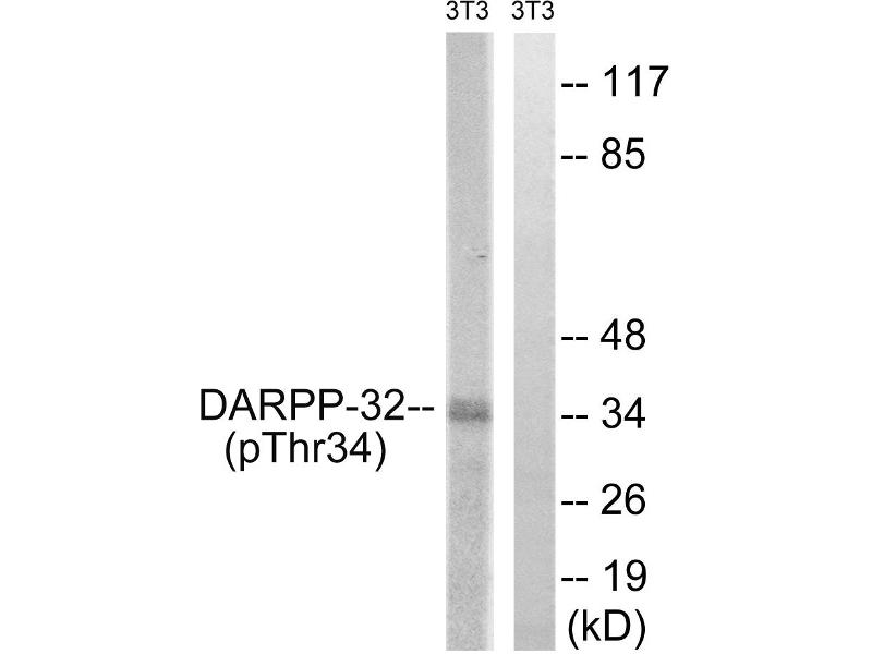 Image no. 3 for anti-Protein Phosphatase 1, Regulatory (Inhibitor) Subunit 1B (PPP1R1B) (pThr34) antibody (ABIN1576020)