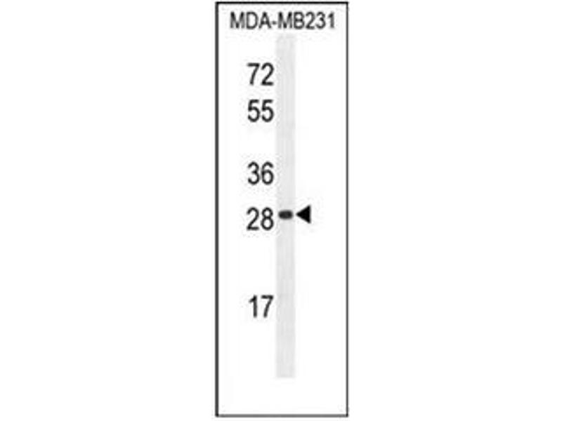 Western Blotting (WB) image for anti-Haptoglobin Related Protein (HPR) (AA 219-247), (Middle Region) antibody (ABIN952789)