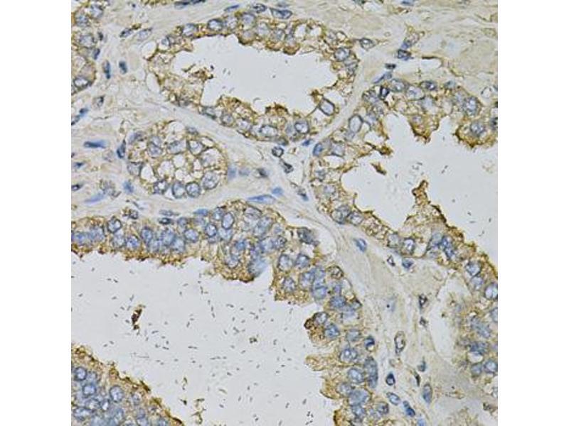 Image no. 3 for anti-Aldehyde Dehydrogenase 3 Family, Member A1 (ALDH3A1) antibody (ABIN6567848)
