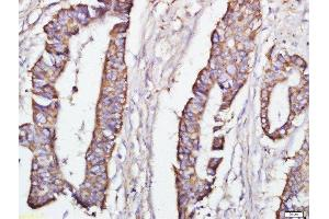Immunohistochemistry (Paraffin-embedded Sections) (IHC (p)) image for anti-DEPTOR Antikörper (DEP Domain Containing MTOR-Interacting Protein) (AA 62-107) (ABIN1387597)