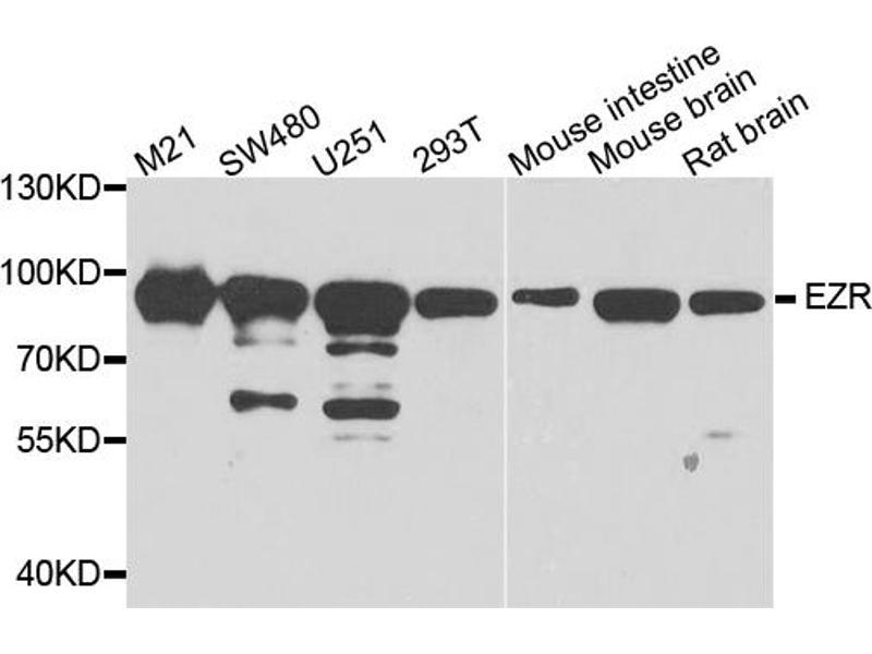Image no. 1 for anti-Ezrin (EZR) antibody (ABIN6566653)