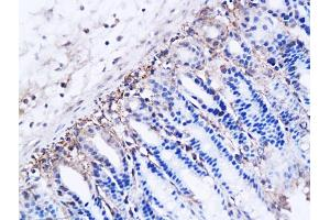 Image no. 1 for anti-rho-Related BTB Domain Containing 2 (RHOBTB2) (AA 631-727) antibody (ABIN706241)
