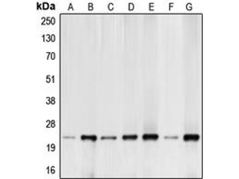 Western Blotting (WB) image for anti-BCL2-Like 11 (Apoptosis Facilitator) (BCL2L11) (N-Term) antibody (ABIN2707367)