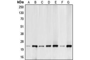 Western Blotting (WB) image for anti-BCL2-Like 11 (Apoptosis Facilitator) (BCL2L11) (N-Term) antibody (ABIN2707367)