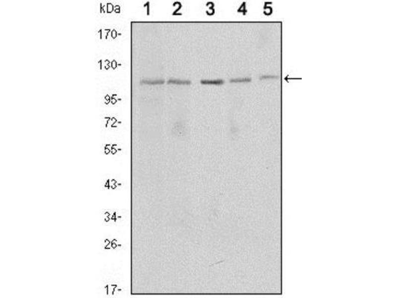 Western Blotting (WB) image for anti-Sirtuin 1 (SIRT1) antibody (ABIN4353901)