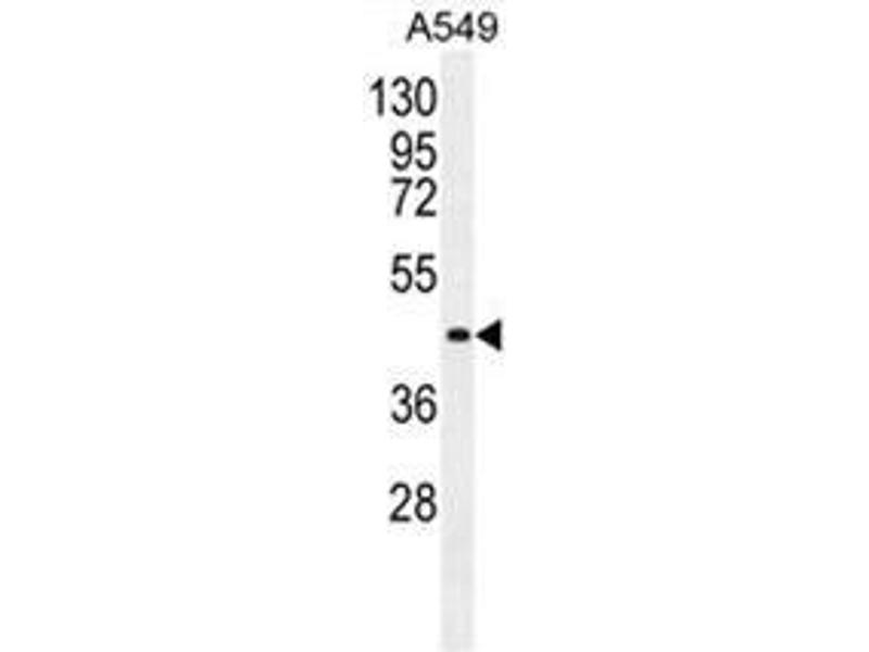 Western Blotting (WB) image for anti-Angiopoietin 2 antibody (ANGPT2) (AA 409-440) (ABIN950412)