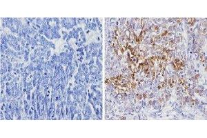 Immunohistochemistry (Paraffin-embedded Sections) (IHC (p)) image for anti-Lectin, Galactoside-Binding, Soluble, 3 (LGALS3) antibody (ABIN152697)