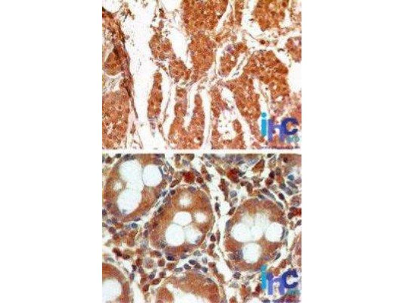 Immunohistochemistry (Paraffin-embedded Sections) (IHC (p)) image for anti-Caspase 3, Apoptosis-Related Cysteine Peptidase (CASP3) antibody (ABIN252651)