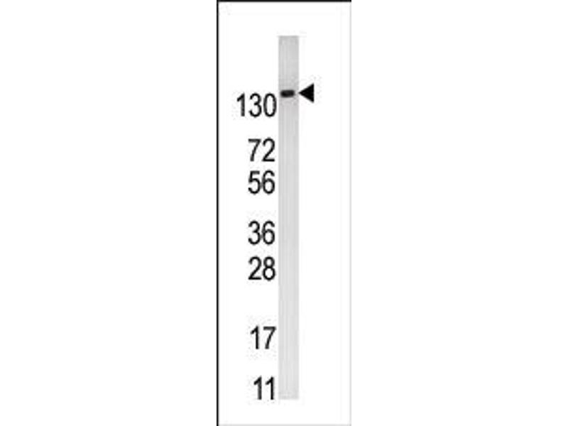image for anti-6-phosphofructo-2-Kinase/fructose-2,6-Biphosphatase 2 (PFKFB2) (N-Term) antibody (ABIN360654)