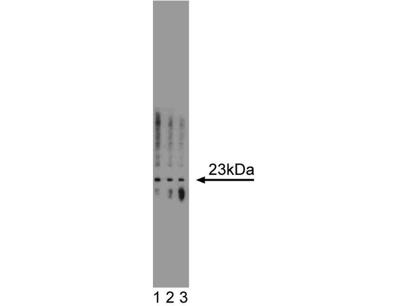 Western Blotting (WB) image for anti-Tumor Protein, Translationally-Controlled 1 (TPT1) (AA 91-107) antibody (ABIN967997)