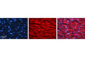 Image no. 1 for anti-Lymphocyte-Specific Protein 1 (LSP1) (N-Term) antibody (ABIN2792094)