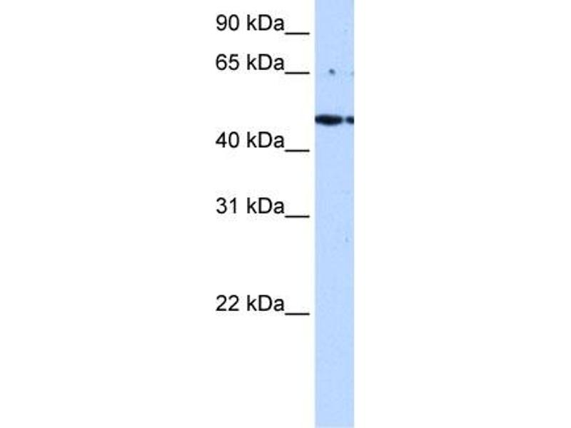 Western Blotting (WB) image for anti-STE20-Related Kinase Adaptor alpha (STRADA) (C-Term) antibody (ABIN2783634)