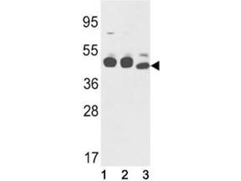 Western Blotting (WB) image for anti-Keratin 18 (KRT18) (AA 401-430) antibody (ABIN3031537)