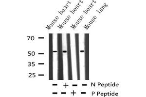 Image no. 4 for anti-Microphthalmia-Associated Transcription Factor (MITF) (pSer180), (pSer73) antibody (ABIN6255037)