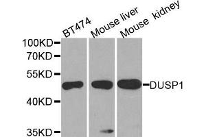 Image no. 1 for anti-Dual Specificity Phosphatase 1 (DUSP1) antibody (ABIN3016981)