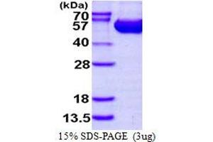 Image no. 1 for Argininosuccinate Lyase (ASL) (AA 1-464) protein (His tag) (ABIN667597)