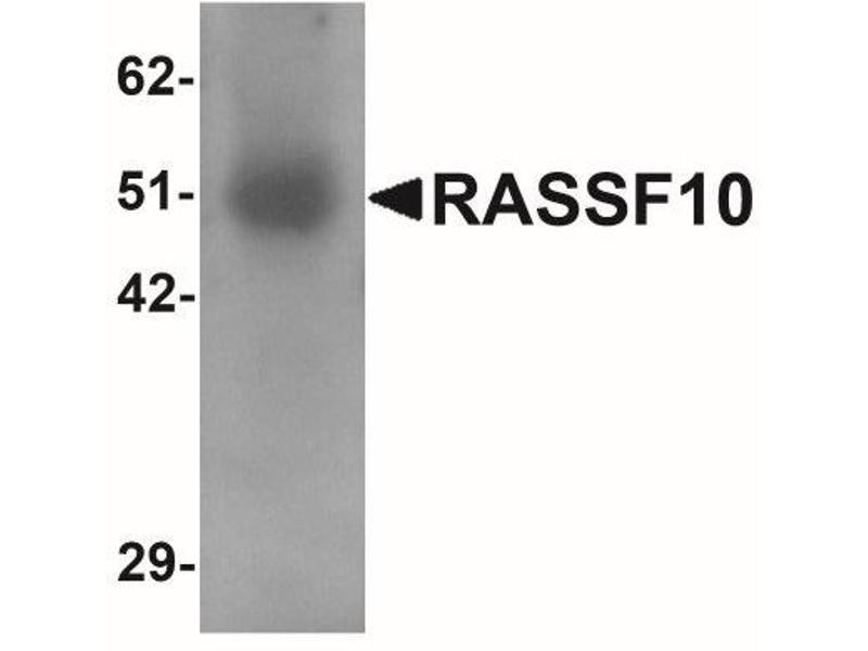 Western Blotting (WB) image for anti-RASSF10 抗体 (Ras Association (RalGDS/AF-6) Domain Family (N-Terminal) Member 10) (N-Term) (ABIN4349448)