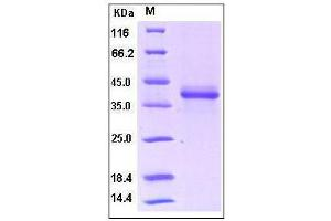 Image no. 1 for S100 Calcium Binding Protein A1 (S100A1) (AA 2-94) (Active) protein (Fc Tag) (ABIN2002260)
