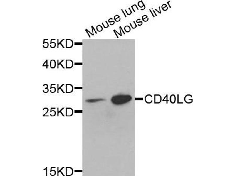 Western Blotting (WB) image for anti-CD40 Ligand antibody (CD40LG) (ABIN1871635)