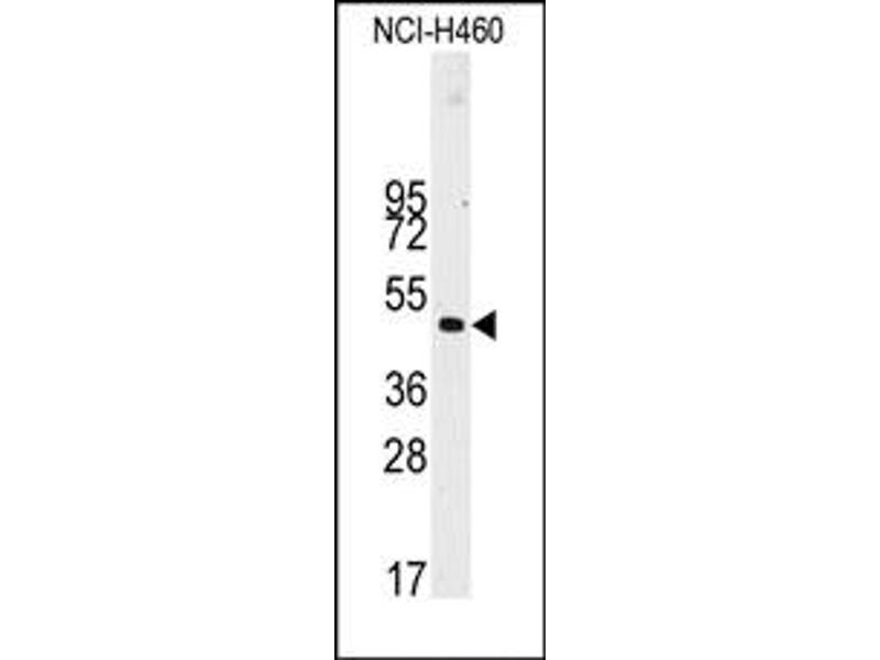 Image no. 1 for anti-Desmin antibody (DES) (ABIN357901)