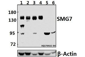 Image no. 1 for anti-Smg-7 Homolog, Nonsense Mediated mRNA Decay Factor (C. Elegans) (SMG7) (AA 512-564) antibody (ABIN6712499)