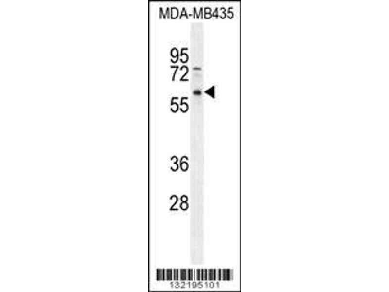 Western Blotting (WB) image for anti-PPP3CC antibody (Protein Phosphatase 3, Catalytic Subunit, gamma Isozyme) (N-Term) (ABIN2495631)