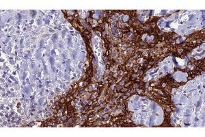 Image no. 1 for anti-Solute Carrier Family 4, Anion Exchanger, Member 3 (SLC4A3) antibody (ABIN6265135)