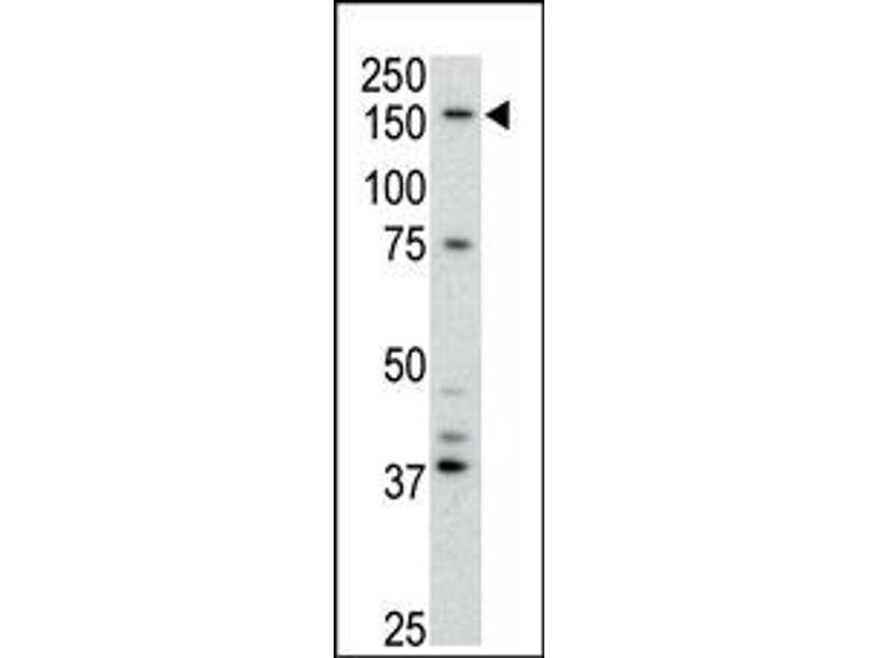 image for anti-ATP-Binding Cassette, Sub-Family B (MDR/TAP), Member 4 (ABCB4) (Center) antibody (ABIN358591)