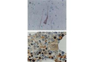 Immunohistochemistry (Paraffin-embedded Sections) (IHC (p)) image for anti-BCL2-Like 1 (BCL2L1) antibody (ABIN4283632)