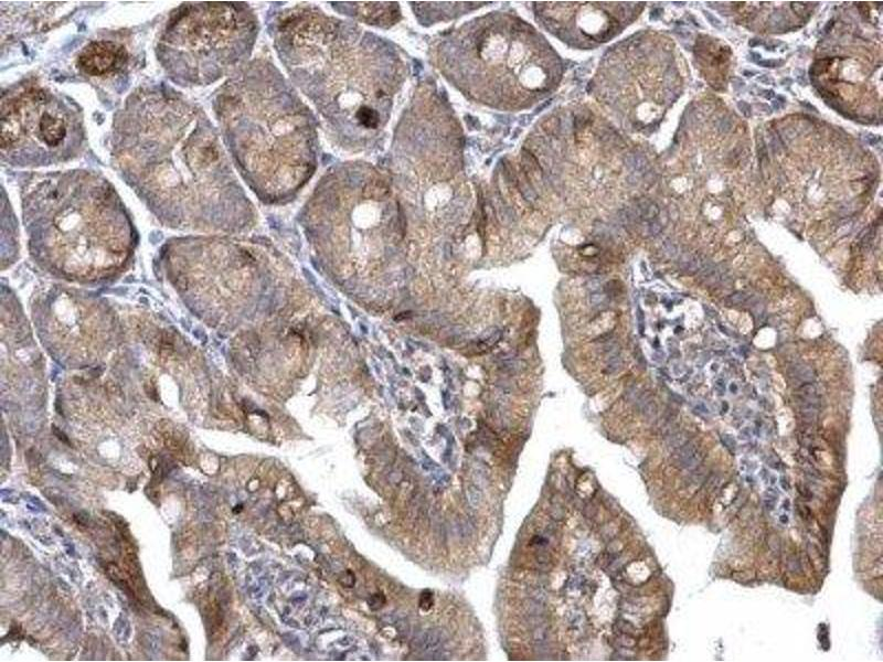Immunohistochemistry (Paraffin-embedded Sections) (IHC (p)) image for anti-HRAS antibody (V-Ha-Ras Harvey Rat Sarcoma Viral Oncogene Homolog) (C-Term) (ABIN4319843)