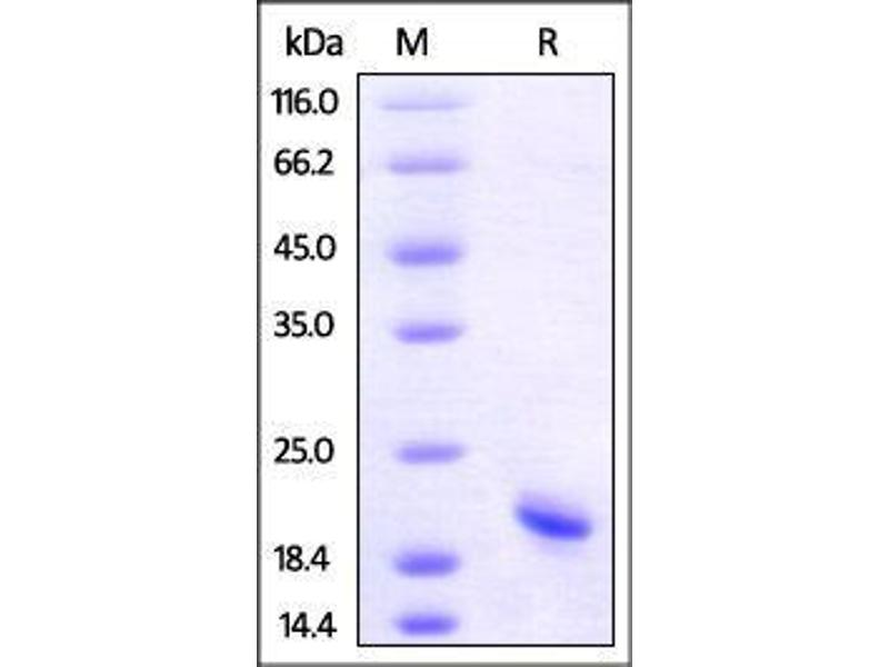 SDS-PAGE (SDS) image for Tumor Necrosis Factor (TNF) (AA 77-233) (Active) protein (AVI tag,Biotin,His tag) (ABIN2870564)