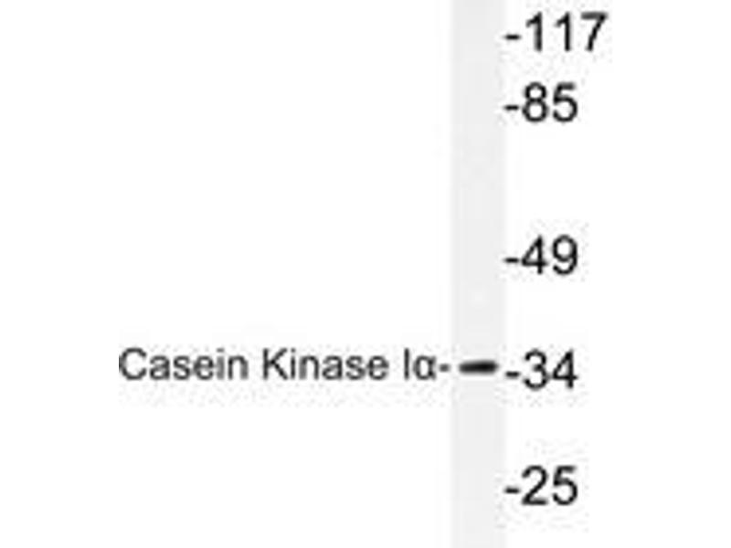 Western Blotting (WB) image for anti-Casein Kinase 1, alpha 1 (CSNK1A1) antibody (ABIN498265)