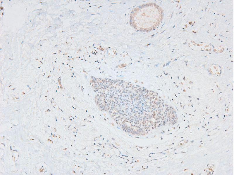 Immunohistochemistry (IHC) image for anti-E1A Binding Protein P300 (EP300) (pSer1834) antibody (ABIN6271336)
