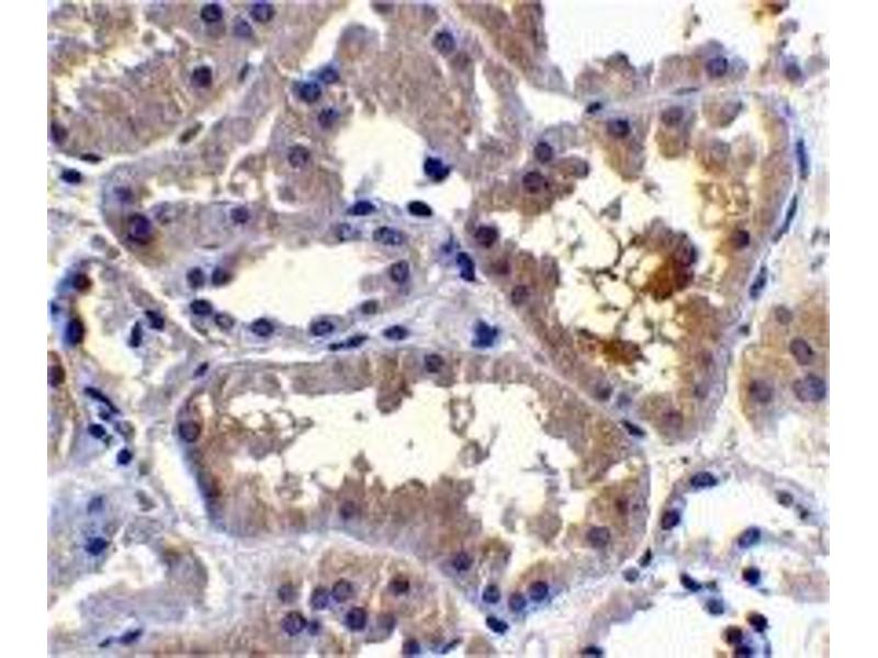 Immunohistochemistry (IHC) image for anti-CASP2 and RIPK1 Domain Containing Adaptor with Death Domain (CRADD) (C-Term) antibody (ABIN1030612)