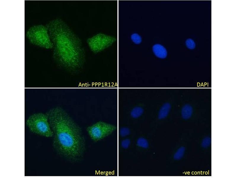 Image no. 4 for anti-Myosin Phosphatase, Target Subunit 1 (PPP1R12A) (C-Term) antibody (ABIN6391349)