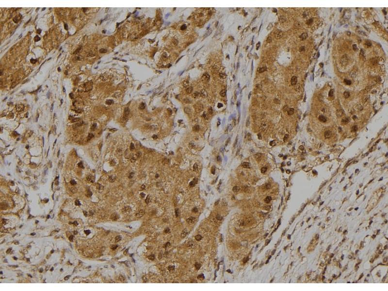 Image no. 1 for anti-Microphthalmia-Associated Transcription Factor (MITF) (pSer516) antibody (ABIN6269699)