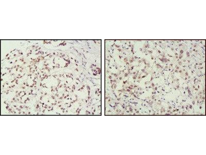 Immunohistochemistry (IHC) image for anti-MSH2 antibody (ABIN1844441)